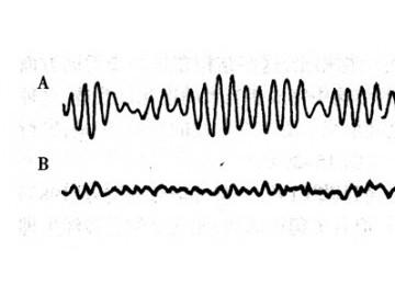 蛇的脑的电活动