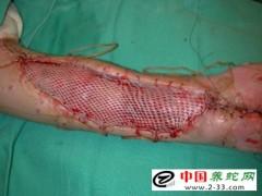 毒蛇咬伤的种类鉴别及诊断